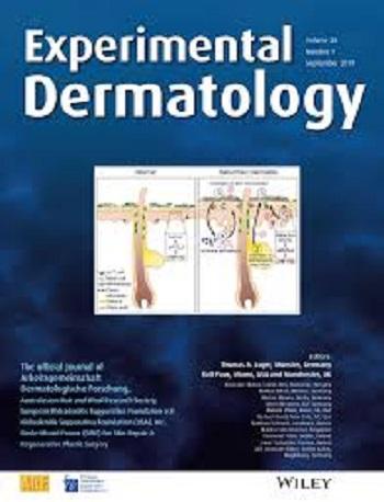 Experimental Dermatology